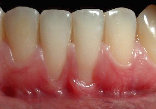 dentista-estetica-vicenza-preview